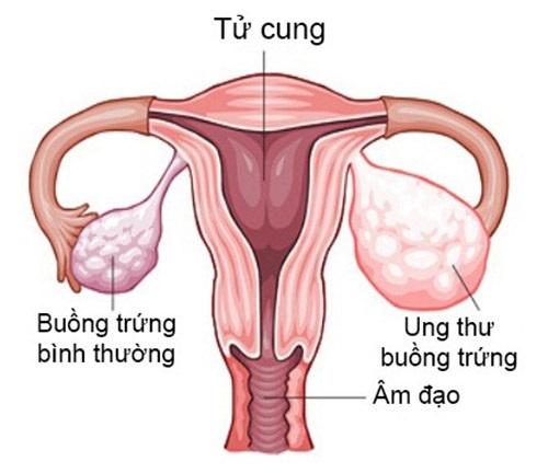 10 dấu hiệu ung thư buồng trứng cực kì nguy hiểm - Ảnh 1