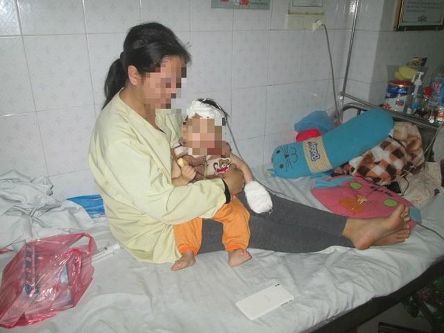 Người mẹ lấy chồng từ thuở 14 bên đứa con bỏng nặng vì nồi xương ninh - Ảnh 1