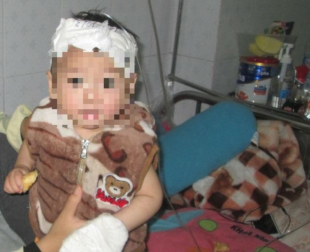 Người mẹ lấy chồng từ thuở 14 bên đứa con bỏng nặng vì nồi xương ninh - Ảnh 2