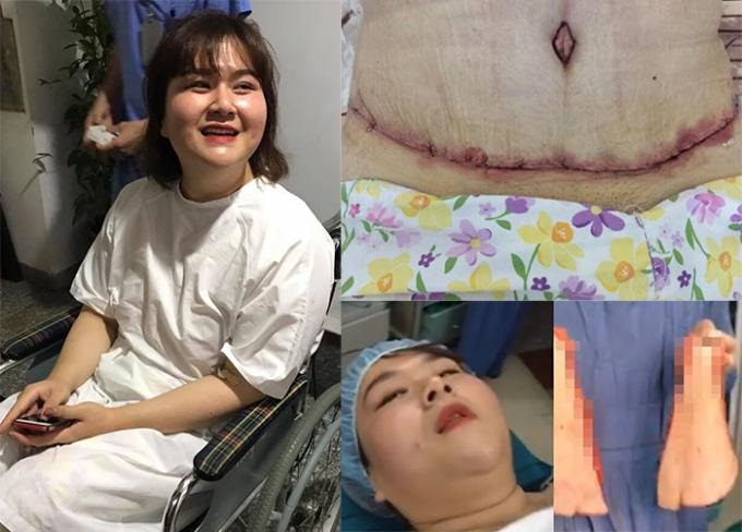 Tiết lộ chi phí Á quân 'Bước nhảy ngàn cân' phẫu thuật cắt bỏ 5kg mỡ bụng - Ảnh 5