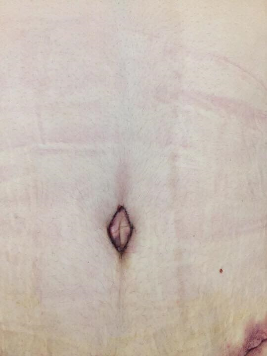 Tiết lộ chi phí Á quân 'Bước nhảy ngàn cân' phẫu thuật cắt bỏ 5kg mỡ bụng - Ảnh 4