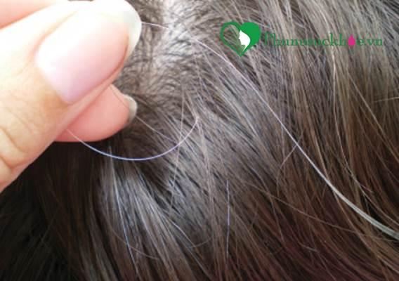 Tạm biệt mái tóc bạc trước tuổi chỉ với 10 nghìn đồng - Ảnh 1