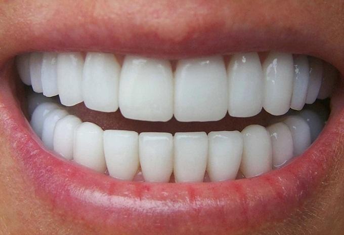 3 cách làm trắng răng, loại bỏ mảng bám nhờ chanh - Ảnh 6