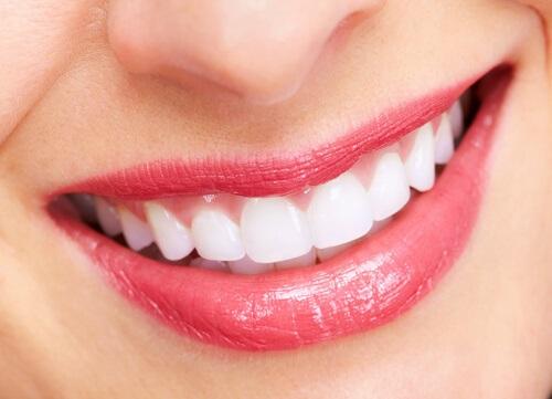 Không cần bỏ tiền triệu đi nha sĩ, chỉ cần làm theo 5 cách này răng tức khắc trắng bóng đẹp khó cưỡng - Ảnh 1