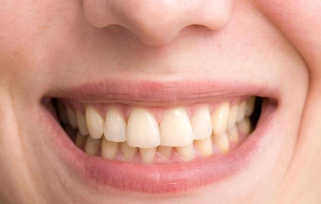 6 sai lầm kinh điển khiến răng ố vàng nhưng bạn vẫn vô tư làm mỗi ngày - Ảnh 1