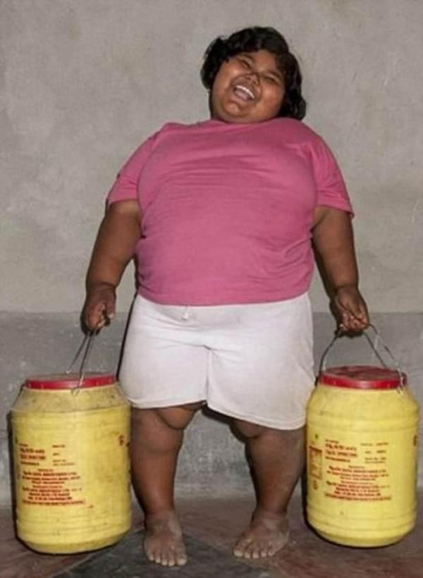 10 đứa trẻ 'béo nhất thế giới' khiến ai cũng phải kinh ngạc - Ảnh 4