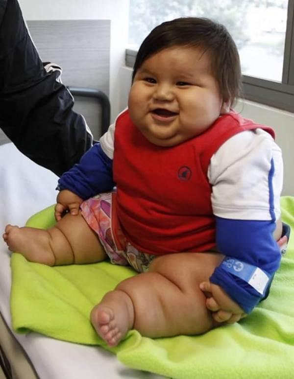 10 đứa trẻ 'béo nhất thế giới' khiến ai cũng phải kinh ngạc - Ảnh 1