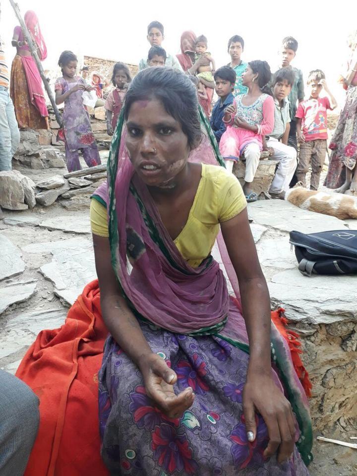 Người phụ nữ bị chồng dùng miếng sắt nóng đốt vùng kín vì nguyên nhân chẳng ai ngờ - Ảnh 4