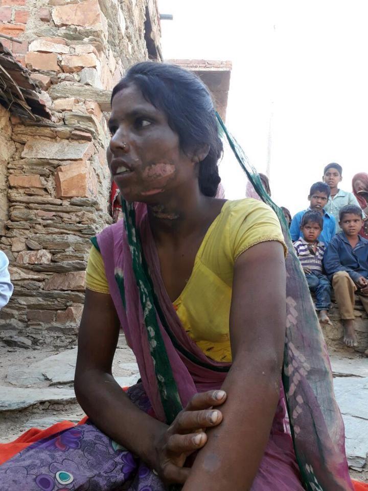 Người phụ nữ bị chồng dùng miếng sắt nóng đốt vùng kín vì nguyên nhân chẳng ai ngờ - Ảnh 2