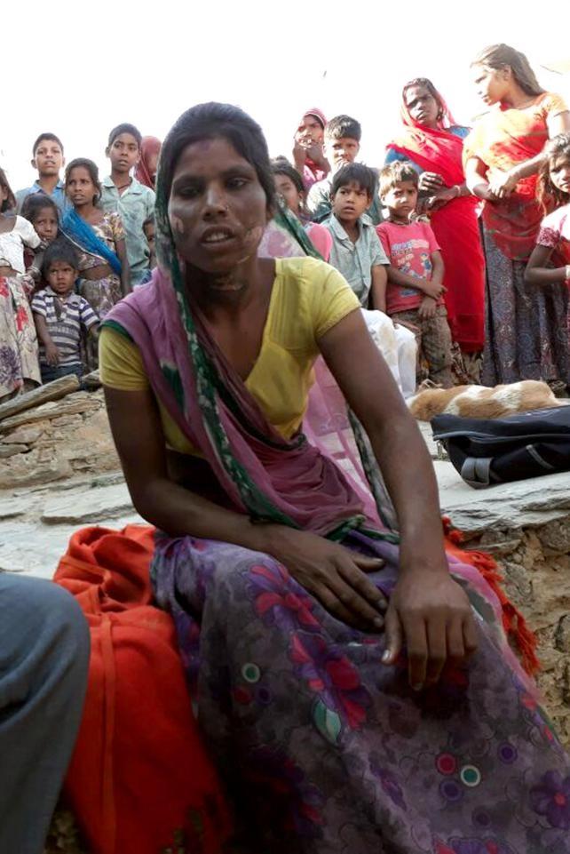 Người phụ nữ bị chồng dùng miếng sắt nóng đốt vùng kín vì nguyên nhân chẳng ai ngờ - Ảnh 3