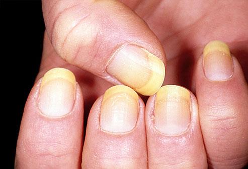 7 dấu hiệu của móng tay tiết lộ tình trạng sức khỏe của bạn - Ảnh 3