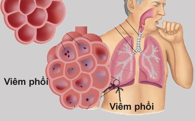 Để bảo vệ cơ thể cũng như hai lá phổi được khỏe mạnh, trước hết, bạn nên thường xuyên ăn những món cháo dưới đây