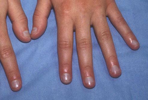 7 dấu hiệu của móng tay tiết lộ tình trạng sức khỏe của bạn - Ảnh 4
