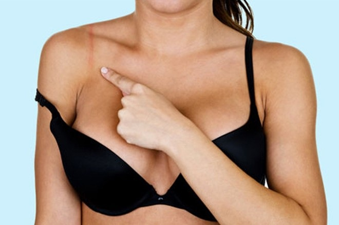 Là con gái đừng bao giờ mặc áo ngực quá chật nếu không muốn bị ung thư vú và rước vô số bệnh vào người - Ảnh 4