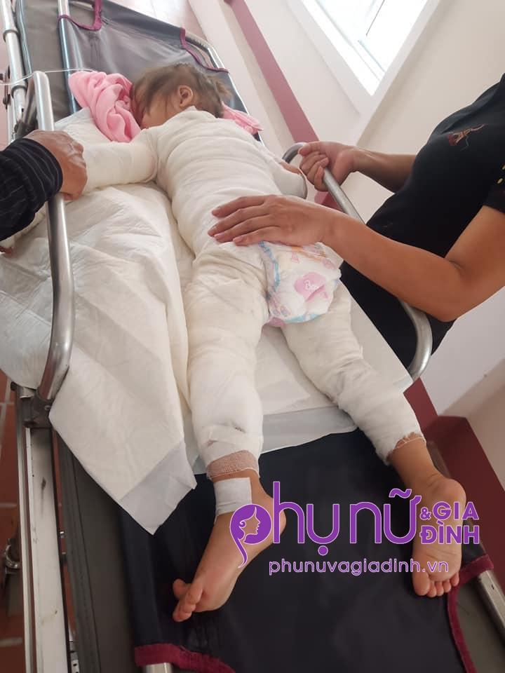 Nhói lòng ánh mắt cầu cứu của bé gái 3 tuổi bị bỏng nặng khi ngã vào nồi nước sôi - Ảnh 2