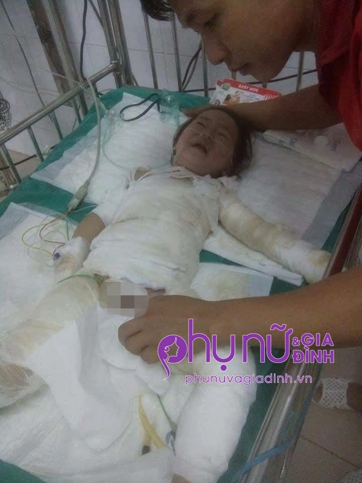 Nhói lòng ánh mắt cầu cứu của bé gái 3 tuổi bị bỏng nặng khi ngã vào nồi nước sôi - Ảnh 3