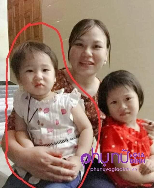 Nhói lòng ánh mắt cầu cứu của bé gái 3 tuổi bị bỏng nặng khi ngã vào nồi nước sôi - Ảnh 4