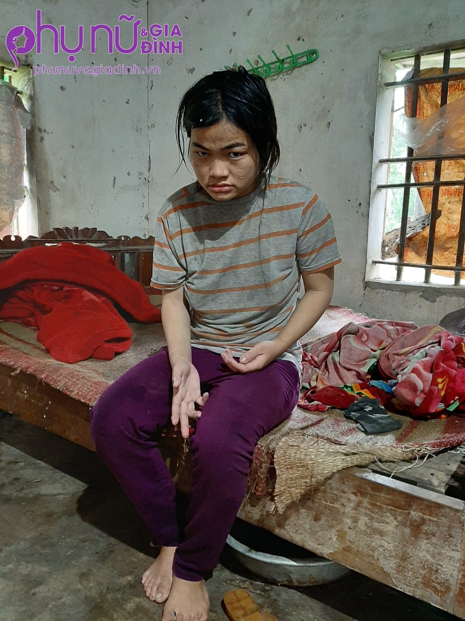 Tai họa liên tiếp giáng xuống gia đình người đàn bà cụt chân có chồng cùng 2 con đều mắc bệnh thần kinh - Ảnh 4