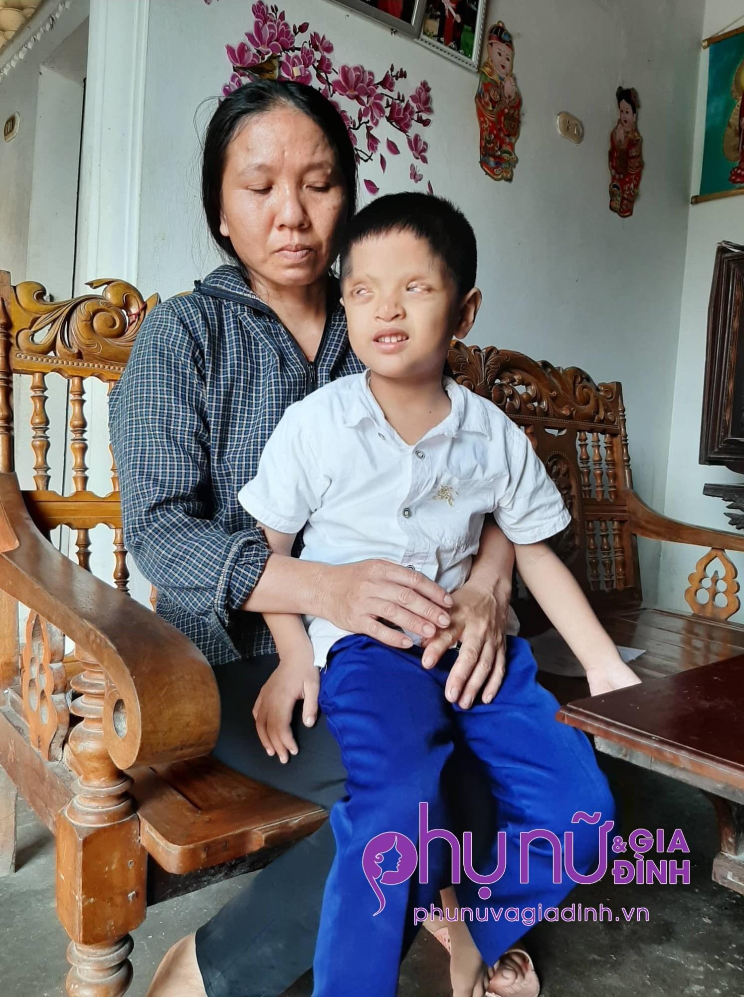 Nghị lực sống phi thường và khát vọng đến trường của cậu bé 6 tuổi có đôi mắt chỉ nhìn thấy 2% ánh sáng - Ảnh 3