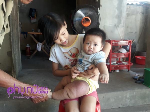 Đau đáu ánh mắt bé gái 7 tháng tuổi mang 'chân voi' đang giành giật sự sống vì căn bệnh hiếm gặp - Ảnh 1