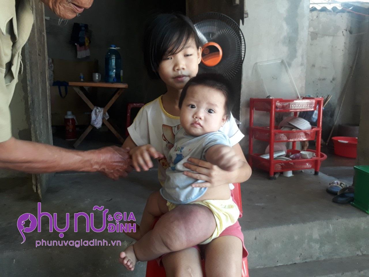 Đau đáu ánh mắt bé gái 7 tháng tuổi mang 'chân voi' đang giành giật sự sống vì căn bệnh hiếm gặp - Ảnh 5