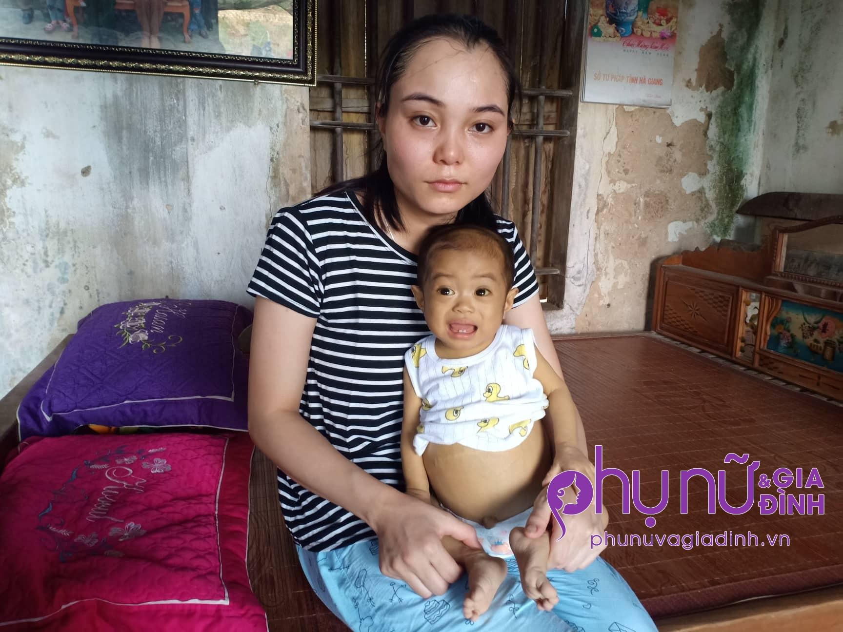 Nghẹn lòng cảnh 'sống mòn' của bé gái 14 tháng tuổi có cái bụng chực nổ tung vì căn bệnh quái ác - Ảnh 4