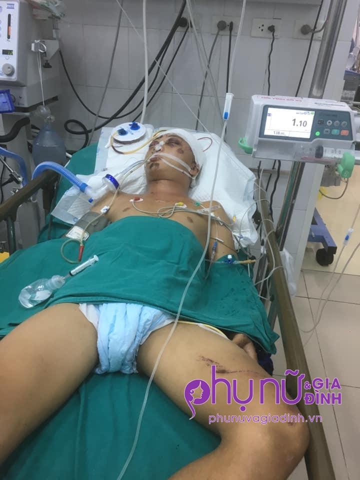 Mẹ nghèo mắc bệnh tim cầu xin cộng đồng cứu giúp con trai duy nhất nguy kịch vì tai nạn giao thông - Ảnh 3