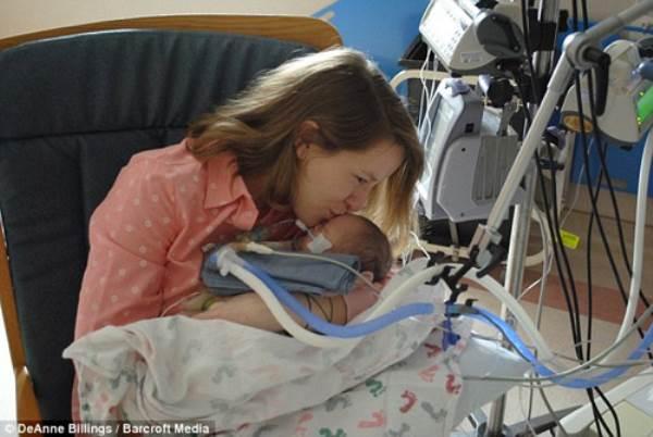 Hình ảnh khó tin của em bé sinh ra với nội tạng nằm ngoài cơ thể - Ảnh 5