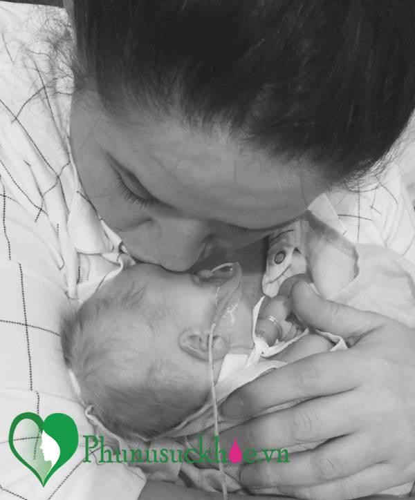 Sinh ra với lỗ hổng ở tim, bé gái 6 tuần tuổi vẫn mạnh mẽ sống sót - Ảnh 1