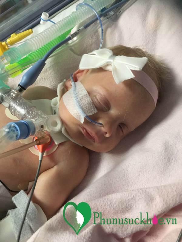 Sinh ra với lỗ hổng ở tim, bé gái 6 tuần tuổi vẫn mạnh mẽ sống sót - Ảnh 2