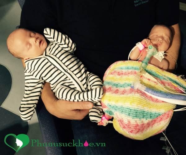 Sinh ra với lỗ hổng ở tim, bé gái 6 tuần tuổi vẫn mạnh mẽ sống sót - Ảnh 3