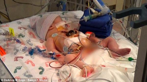 Hình ảnh khó tin của em bé sinh ra với nội tạng nằm ngoài cơ thể - Ảnh 1