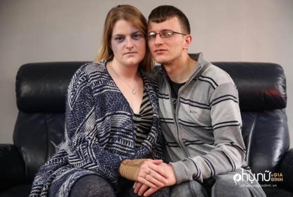 Ai cũng nghĩ bà vợ này bị chồng đánh cho đến khi biết nguyên nhân đáng sợ phía sau - Ảnh 1