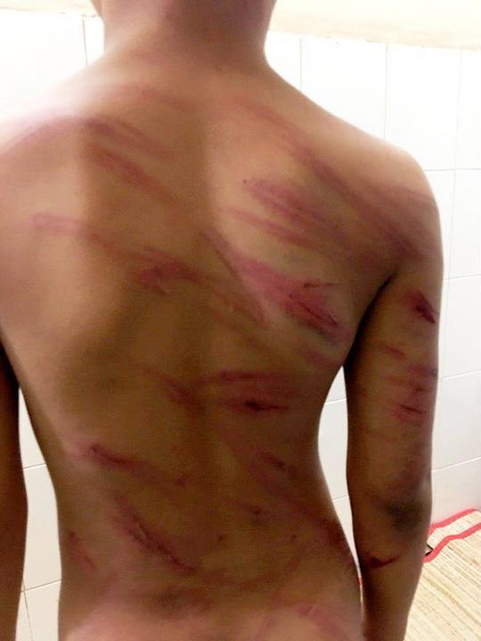 Bé trai 8 tuổi bị cha dượng bạo hành, đánh đập dã man: Thái độ bao che của người mẹ là giáo viên khiến dư luận ngỡ ngàng, căm phẫn - Ảnh 1
