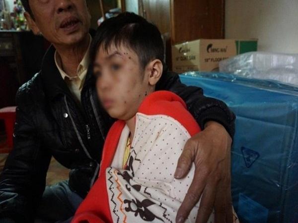 Nhà trường sẵn sàng tiếp nhận bé trai 10 tuổi bị cha ruột và mẹ kế bạo hành gãy xương sườn, rạn sọ não vào học ngay - Ảnh 1