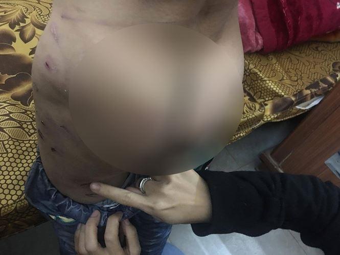 Cận cảnh những vết thương chi chít trên người bé trai 9 tuổi bị bố bạo hành dã man nhiều năm - Ảnh 9