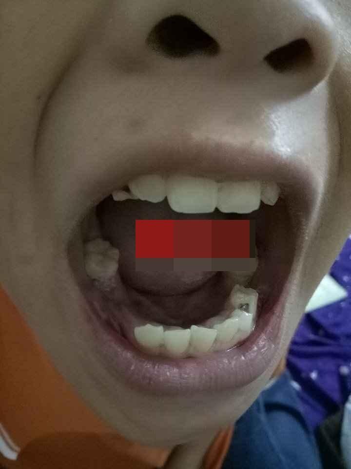 Hà Nội: Bé trai 9 tuổi nghi bị bố ruột bạo hành tàn nhẫn - Ảnh 2