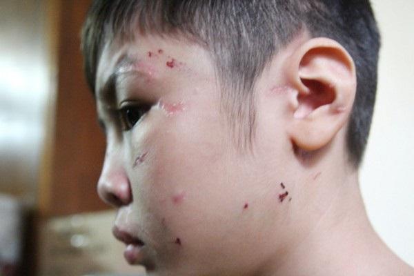 Bố bạo hành con 10 tuổi đến gãy xương sườn, rạn sọ não: Từng lên tivi và được đồng nghiệp nhận xét là người hiền lành - Ảnh 2