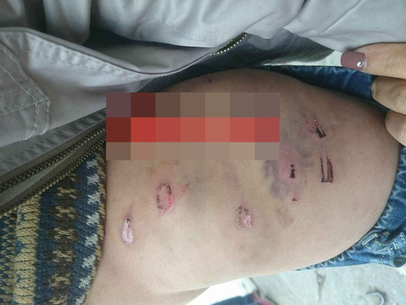 Hà Nội: Bé trai 9 tuổi nghi bị bố ruột bạo hành tàn nhẫn - Ảnh 1