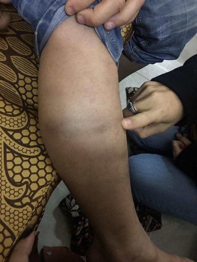 Cận cảnh những vết thương chi chít trên người bé trai 9 tuổi bị bố bạo hành dã man nhiều năm - Ảnh 5