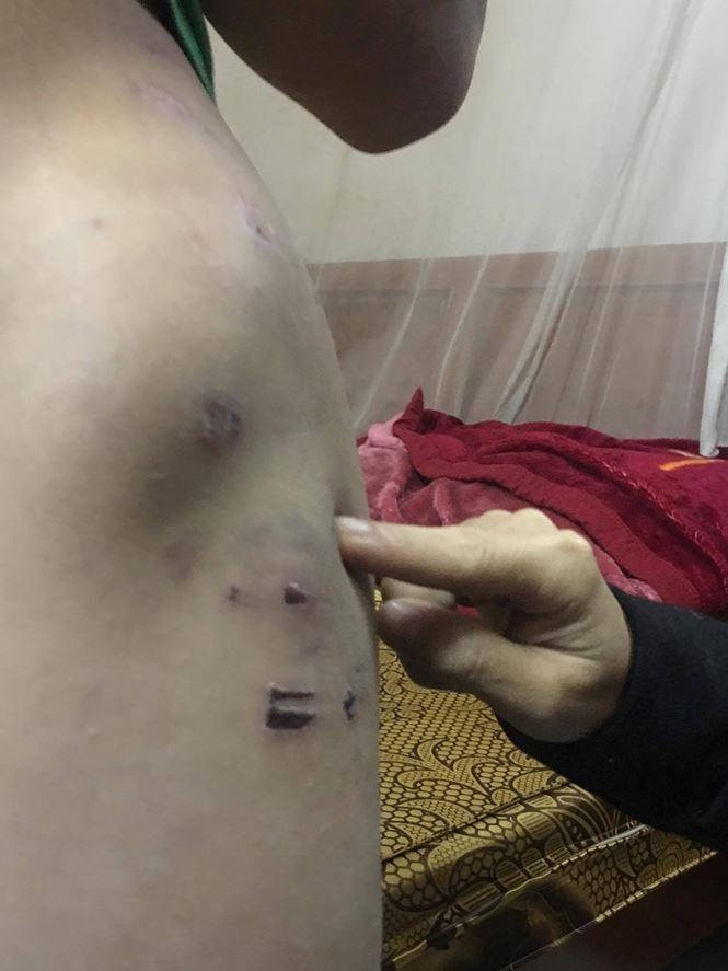 Cận cảnh những vết thương chi chít trên người bé trai 9 tuổi bị bố bạo hành dã man nhiều năm - Ảnh 8