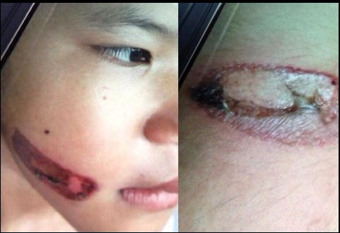 Vụ bé gái bị bạo hành, dí sắt nung đỏ vào người: Hàng xóm tiết lộ về mẹ kế - Ảnh 1