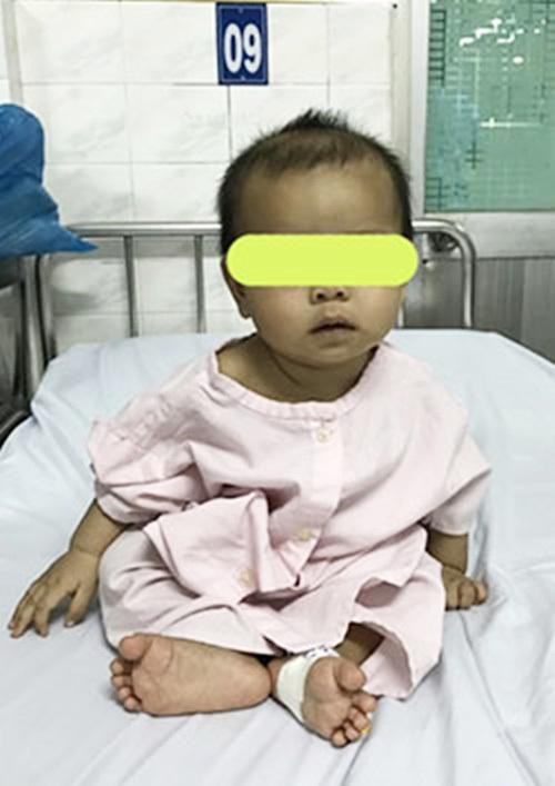 Cảnh báo: Nuốt bông tai của mẹ, bé 7 tháng tuổi bị rách thực quản, suýt nguy hiểm tính mạng - Ảnh 4