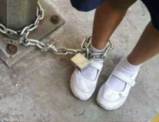 Bé gái 3 tuổi bị giáo viên xích chân, cào nát mặt khi đi học ở trường - Ảnh 2