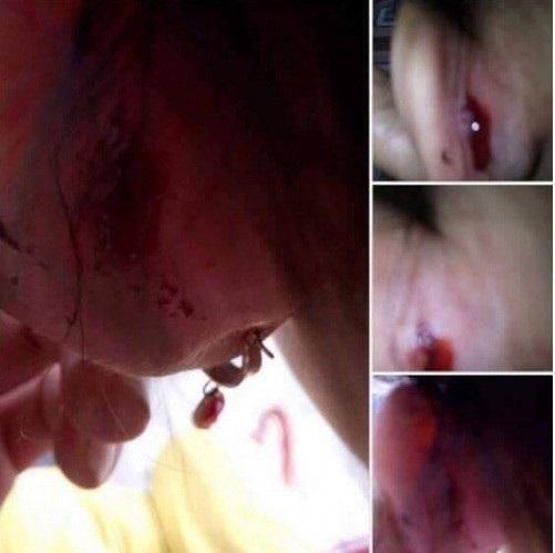 Bé gái 3 tuổi bị giáo viên xích chân, cào nát mặt khi đi học ở trường - Ảnh 3