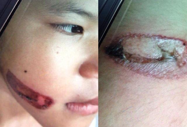 Bé gái 7 tuổi nghi bị cha ruột dùng sắt nung đỏ dí vào người, đánh lõm cả đầu - Ảnh 1