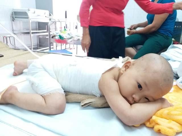 Con gái 16 tháng tuổi bị bỏng, mẹ bôi kem đánh răng làm mát và nhận cái kết vô cùng đau đớn - Ảnh 1