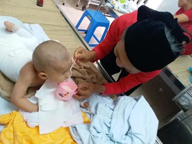Con gái 16 tháng tuổi bị bỏng, mẹ bôi kem đánh răng làm mát và nhận cái kết vô cùng đau đớn - Ảnh 3