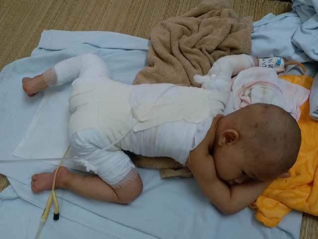 Con gái 16 tháng tuổi bị bỏng, mẹ bôi kem đánh răng làm mát và nhận cái kết vô cùng đau đớn - Ảnh 4