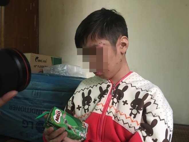 Thắt lòng lời kể của bé trai 10 tuổi bị bố và mẹ kế bạo hành tàn nhẫn - Ảnh 1